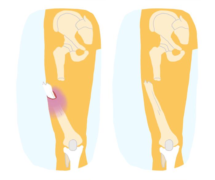 Quais são os sintomas, tipos e procedimentos para fraturas?