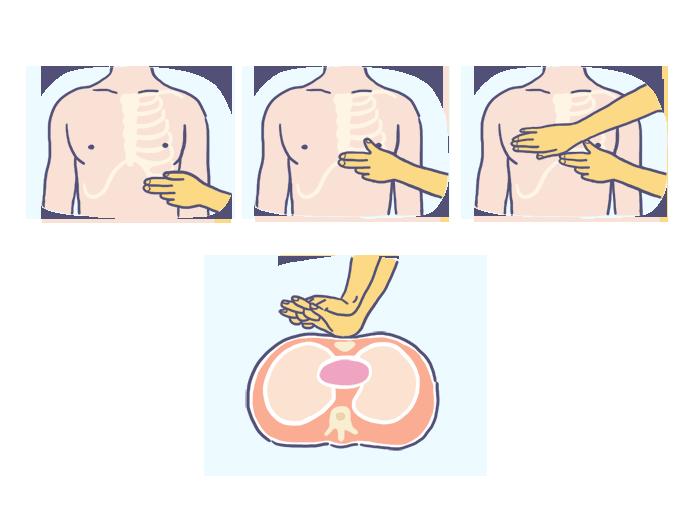 Como fazer a reanimação cardiopulmonar?